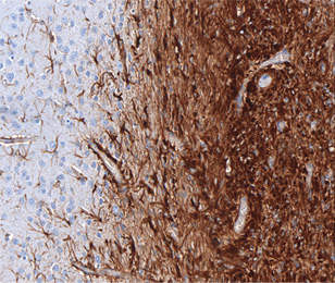 Tissue section of a mouse brain with a pilocytic astrocytoma. The brown staining indicates astrocytes.
