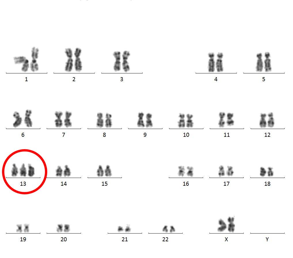 poor prognosis for leukemia patients with trisomy 13labor für leukämiediagnostik, klinikum der lmu münchen