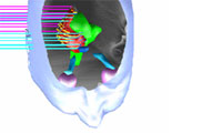 Computer-aided imaging techniques allow for optimal planning of radiation therapy